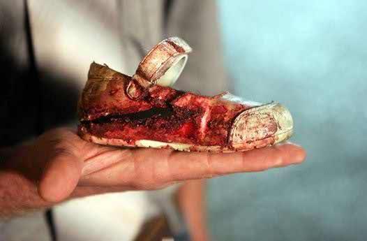 عکسی از کفش خونی یک کودک فلسطینی در بمباران غزه